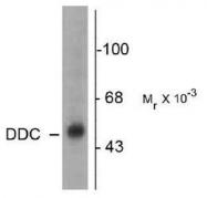 NB300-253 - AADC / DDC