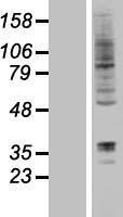 NBL1-15441 - DORFIN Lysate
