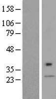 NBL1-09985 - DPAGT1 Lysate