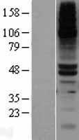 NBL1-09988 - DPEP1 Lysate