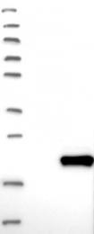NBP1-87969 - DPH4