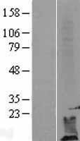 NBL1-09993 - DPM2 Lysate
