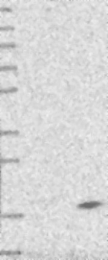 NBP1-81216 - DPM3
