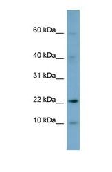 NBP1-52919 - DPPA5 / ESG1