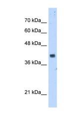 NBP1-54645 - PDSS1