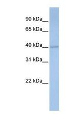 NBP1-54646 - PDSS1