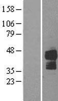 NBL1-17142 - DR5 Lysate