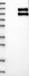 NBP1-84982 - TNFRSF21 / Death receptor 6 (DR6)