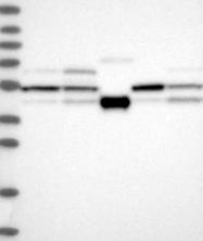 NBP1-84981 - STK17A / DRAK1