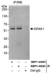 NBP1-42692 - STK17A / DRAK1