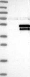 NBP1-84980 - STK17B / DRAK2