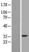 NBL1-10024 - DSCR3 Lysate