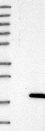 NBP1-84295 - DSCR4