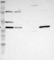 NBP1-88302 - DSN1