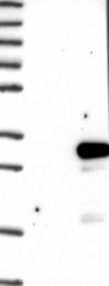NBP1-88776 - DTD1