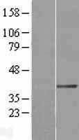 NBL1-10037 - DTX3 Lysate