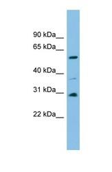 NBP1-57742 - DUS1L