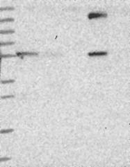NBP1-91852 - DUS2L