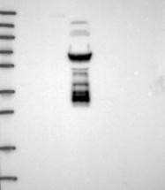 NBP1-91853 - DUS2L