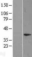 NBL1-10047 - DUSP11 Lysate