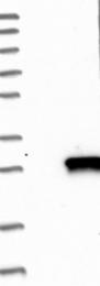NBP1-81046 - DUSP14 / MKP6