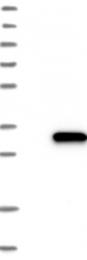NBP1-84041 - DUSP19