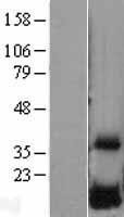 NBL1-10051 - DUSP23 Lysate