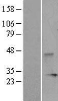 NBL1-10053 - DUSP3 Lysate