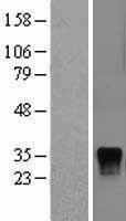NBL1-10055 - DUSP4 Lysate