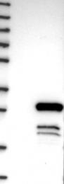 NBP1-88779 - DYDC1