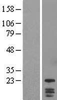 NBL1-10065 - DYDC1 Lysate