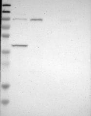 NBP1-84032 - DYRK1A