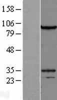 NBL1-10082 - DZIP1L Lysate