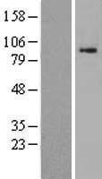 NBL1-09711 - DACT1 Lysate