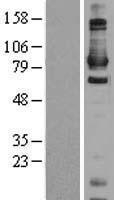 NBL1-09722 - Daxx Lysate