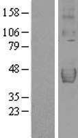 NBL1-17144 - DcR2 Lysate
