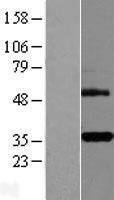 NBL1-17158 - DcR3 Lysate
