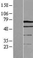 NBL1-09745 - DCP1A Lysate