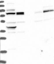 NBP1-87964 - Dedol-PP synthase