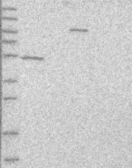 NBP1-87390 - TUBD1