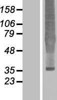 NBL1-13942 - Delta Opioid Receptor Lysate