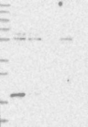 NBP1-87424 - DCTD