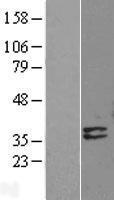 NBL1-09960 - Deoxyribonuclease I like 1 Lysate