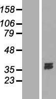 NBL1-09961 - Deoxyribonuclease I like 1 Lysate