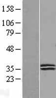 NBL1-09962 - Deoxyribonuclease I like 1 Lysate