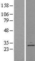 NBL1-09837 - Derlin 1 Lysate