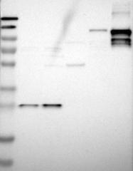 NBP1-85710 - Desmocollin-2