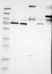 NBP1-85711 - Desmocollin-2