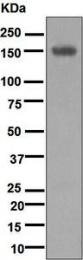 NBP1-95913 - Desmoglein-1
