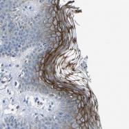NBP1-88099 - Desmocollin-1